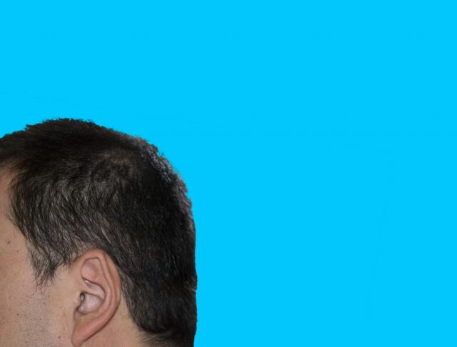 後頭部の絶壁に治し方はあるの?原因や対処法をご紹介!!