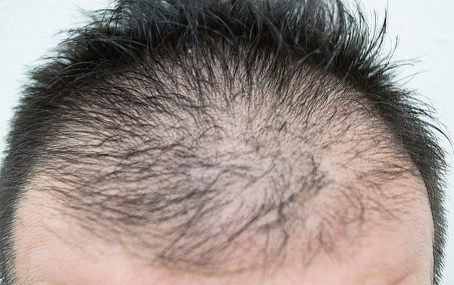 前髪の量が減ってきた!?でも大丈夫!髪の増やし方のコツ