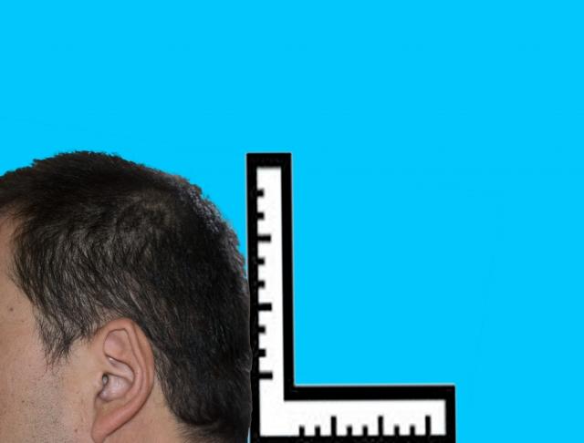 成人でも後頭部の形が変わる?頭蓋骨の歪みは姿勢にあり!
