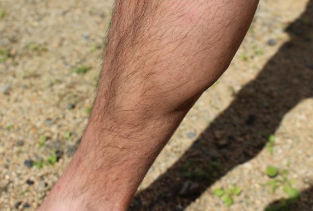 足の毛はいらない!すね毛に悩む男性には脱毛がおすすめ!