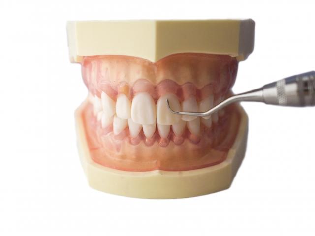 歯石除去をしたあとは!超音波歯ブラシで自宅でのケアを