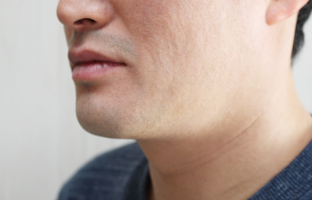 顎が伸びることってあるの?考えられる原因と対策をご紹介