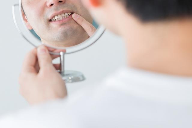 前歯の隙間が茶色になっている!これって虫歯?その原因とは