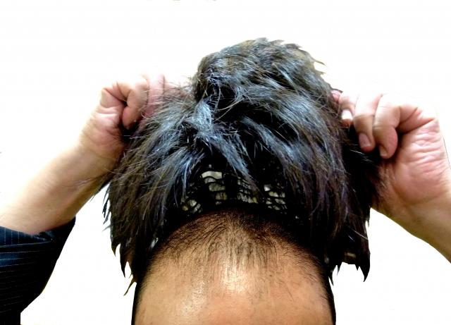 ウィッグ装着時に髪の毛を上手にネットに入れるやり方