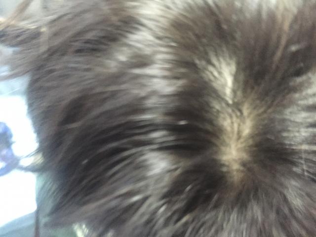 髪の毛にフケを発見!洗い方や乾かし方などに配慮して対策!