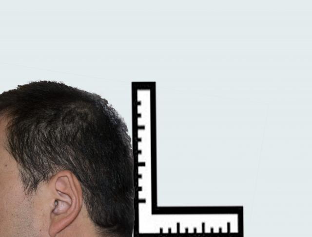 後頭部が平らな絶壁頭は髪型でカバー!頭皮の健康も大事