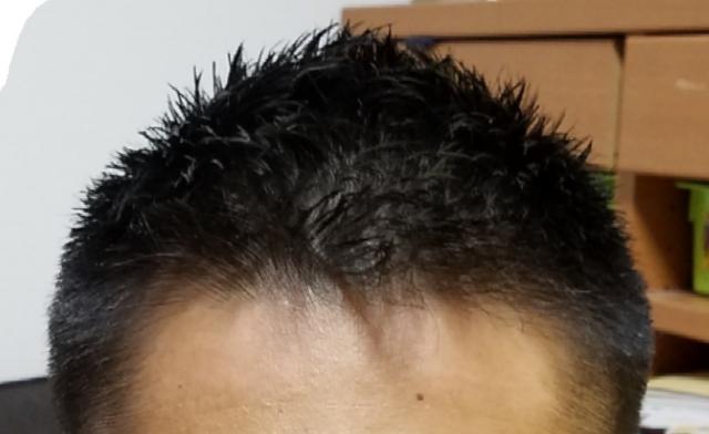 これで大丈夫!前髪を切りすぎたときの対処法!