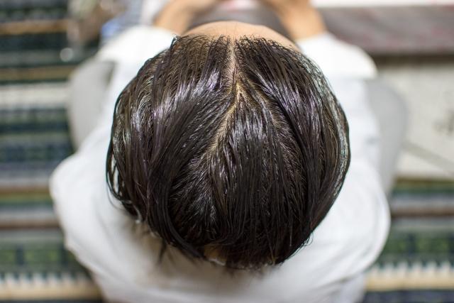 ストレス性白髪の実態!20代の若者に白髪が増えている原因