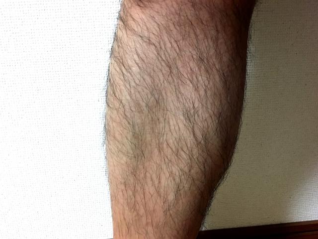 体毛が濃くなるとコンプレックスに…男性ホルモンが原因?