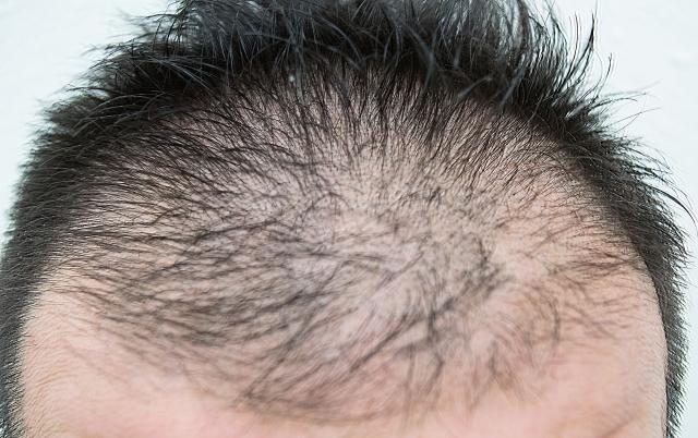 薄毛に似合う髪型をご紹介!男性の薄毛を目立たせない方法