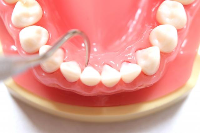 歯石除去は社会人としてのエチケット!保険や料金の相場は?
